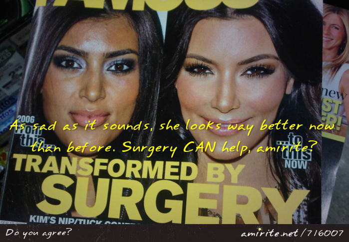 As sad as it sounds, Kim Kardashian looks way better now than before. Surgery CAN help, <strong>amirite?</strong>