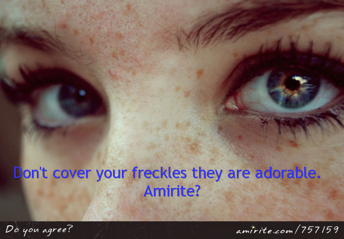 Freckles are adorable.  <strong>Amirite?</strong>