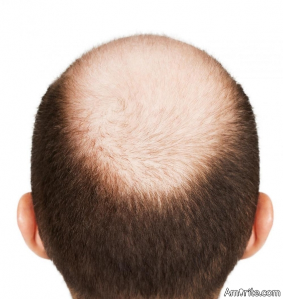 No man with a thick, full head of hair - and in his right mind - would want his hair styled as if he were partially bald.