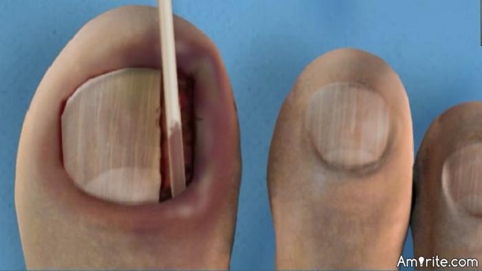 Ingrown toenails suck.